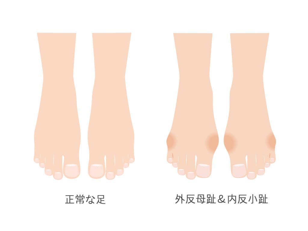 母趾と小趾